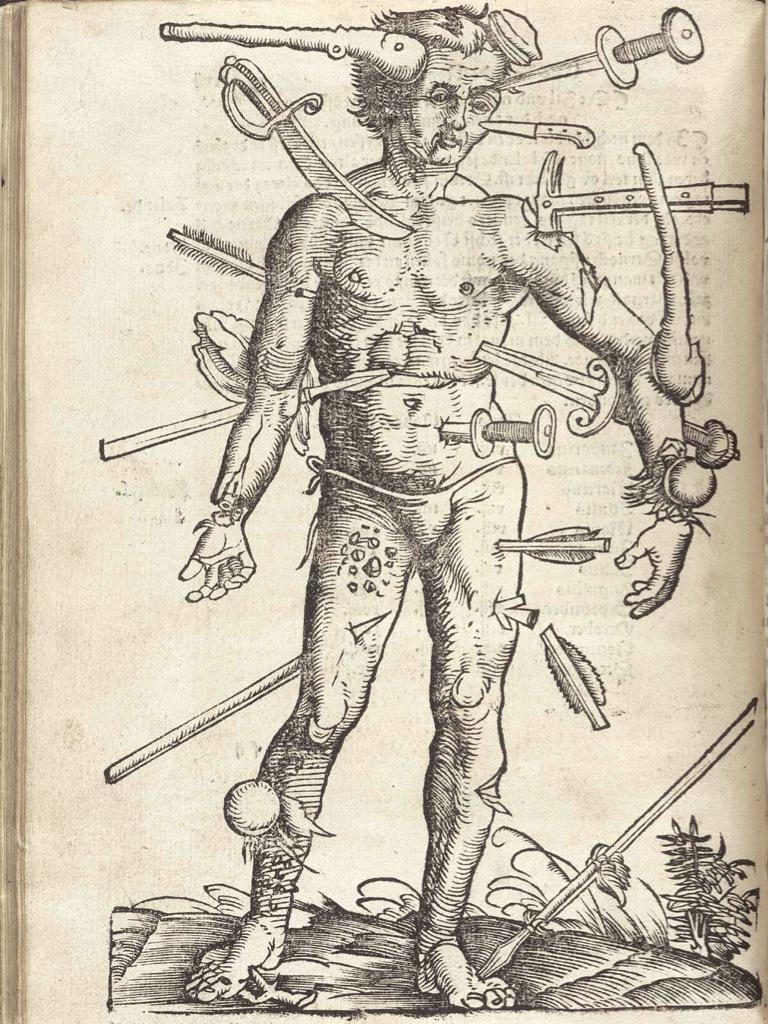 En som behöver en hel del vård. Illustration av alla sorters sår man kunde få i strid. Kanske en bra bild för medmänniskan?